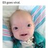 Cute little baby wirh no nose! :$